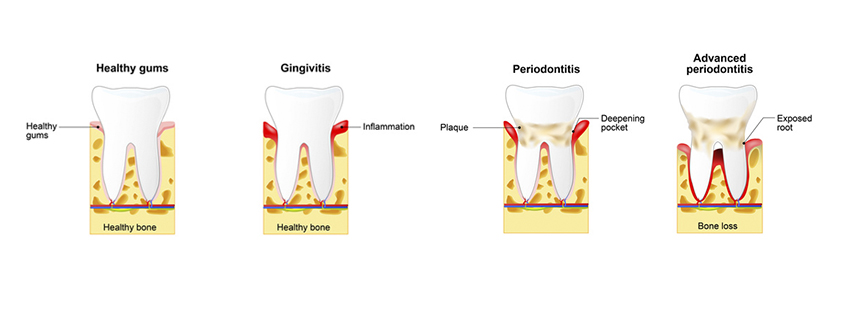 prevention of periodontitis essay